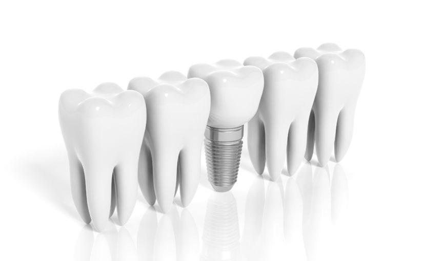 Aperfeiçoamento - Implante e Protese