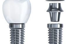 Especialização - Implantodontia