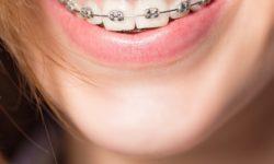 Especialização - Ortodontia