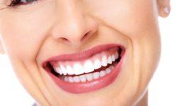 Lentes-de-contato-dental-Saiba-como-o-sorriso-perfeito-é-possível-3-1132x670 (1)